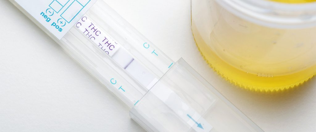 medical marijuana urine test
